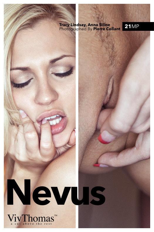 Nevus