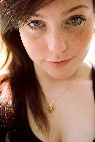 freckles1
